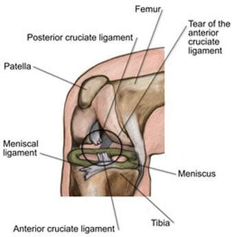 acl ligament tear