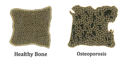 what_is_osteoporosis
